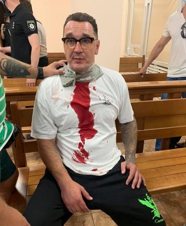 Сьогодні в будівлі суду одеський блогер полоснув себе лезом по горлу
